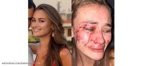 عارضة أزياء أوكرانية بعد تعرضها لاعتداء في تركيا